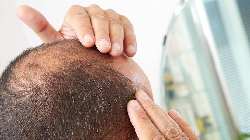 کافئین ریزش ارثی مو را درمان می کند