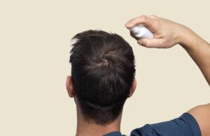 16 درمان طبیعی برای ریزش مو